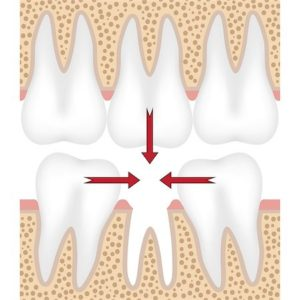 Effects of Missing Teeth - Smile Craft Dental Clinic Goa